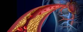 Study reveals ways to improve heart procedure outcomes